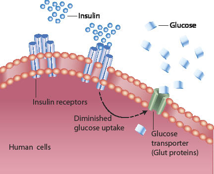 Scientists discover new causes of diabetes