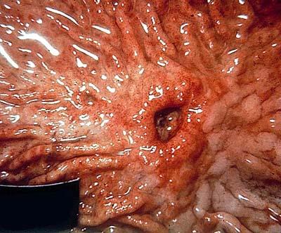 Питание при злокачественных опухолях толстой кишки